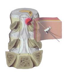 Нуклеопластика межпозвонковых дисков