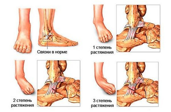 Растяжение связок голеностопного сустава - лечение в домашних условиях