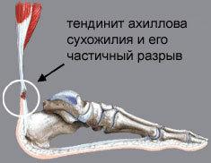 Тендинит ахиллова сухожилия: симптомы, лечение и фото