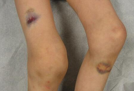 Синовэктомия: суть процедуры, последствия и период реабилитации