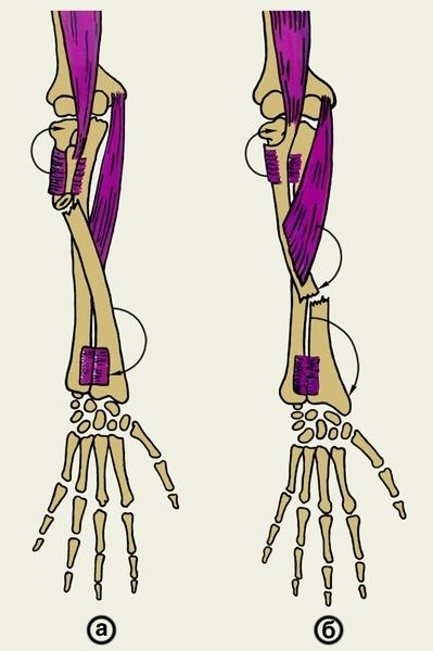 Подвывих головки лучевой кости: симптомы и лечение