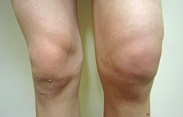Препателлярный бурсит коленного сустава: причины, лечение, фото