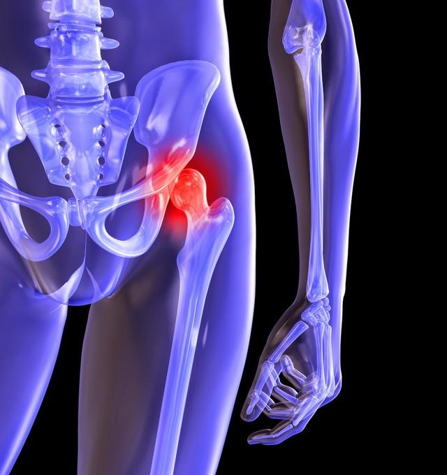 Диспластический коксартроз тазобедренного сустава