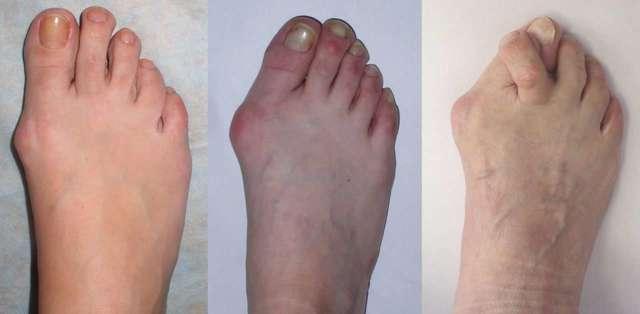 Подагра на ногах: способы лечения и симптомы