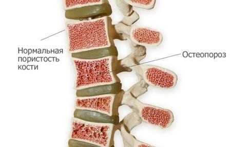 Диффузный остеопороз: причины, симптомы и лечение