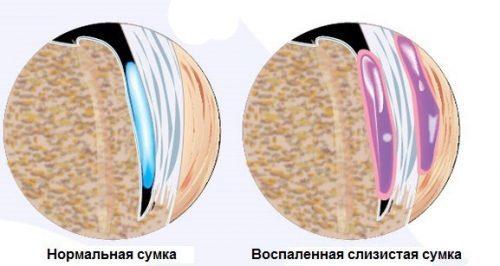 Бурсит стопы: симптомы, лечение, виды и фото