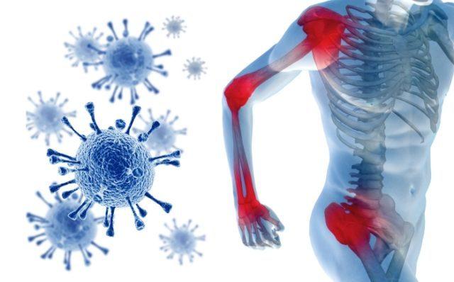 Реактивный полиартрит: симптомы и лечение