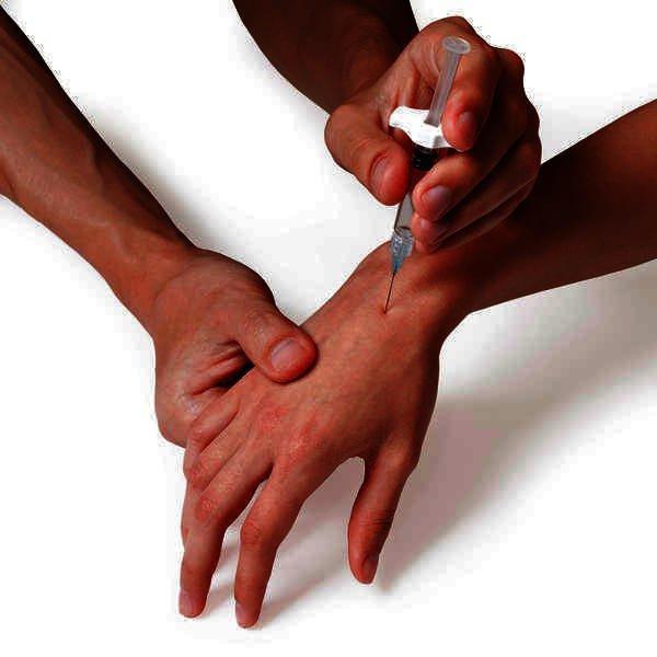 Признаки появления гигромы запястья и способы ее лечения
