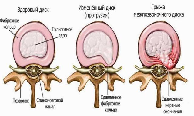Циркулярная протрузия межпозвонковых дисков: виды и лечение