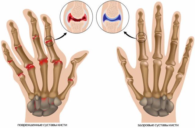 Шишка на пальцах рук: способы лечения и причины заболевания